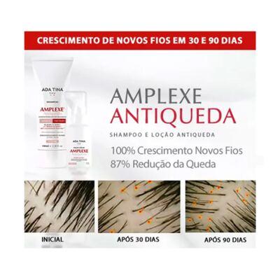 Imagem 3 do produto Amplexe Antiqueda Ada Tina - Tratamento Antiqueda - 50ml