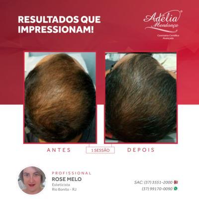 Imagem 6 do produto Kit Home Care Hair Ceuticals - 3 produtos